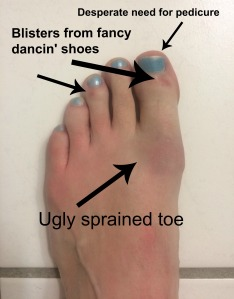 Foot with sprained toe